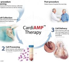 The BioCardia cardiac stem cell CardiAMP trial is a Phase III study looking at the efficacy of using stem cells to improve heart function in heart failure patients. It is the first trial for this technology to reach Phase III trial.