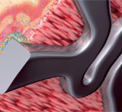 Biosensors BioMatrix