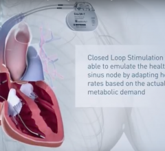 closed loop stimulation, DDD-CLS, ACC17, SPAIN trial