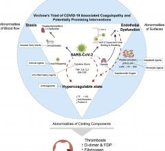 Severe acute respiratory syndrome-coronavirus-2 (SARS-CoV-2) can potentiate all 3 sides of Virchow's Triad of coagulopathy, including endothelial dysfunction, blood flow stasis, and hypercoagulability. Angiotensin-converting enzyme-2 (ACE-2)–dependent viral entry and the virus-induced inflammatory response can lead to endothelial dysfunction. Clotting Prevention in COVID-19 Patients, Thrombosis Prevention in COVID-19 Patients, Preventing blood clots in COVID-19 patients
