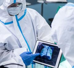 Clinicians reviewing a COVID-19 patient's lung CT that reveals the severity of COVID-caused pneumonia. The impact of COVID on radiology was a major, over arching trend at  the 2020 Radiological Society of North America (RSNA) meeting. Getty Images #RSNA20 #RSNA2020