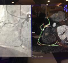 An example of Siemens' syngo CTO navigation technology that fuses computed tomogragraphy (CT) imaging with live angiography to help navigate vessel segments that are occluded and not visible on angiography alone.