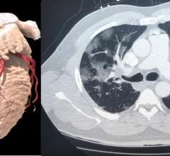 Left, a3-D rendering of a heart from a cardiac CT exam. Right, a lung-CT exam showing the heart and ground glass lesions in the lungs of a COVID-19 patient. CT has become a front-line imaging modality in the COVID era because it offers both cardiac and lung information to help determine a patients disposition with chest pain, COVID-19 and COVID-caused myocarditis and pulmonary embolism.