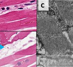 Figure B — Top panel, neutrophils noted in collections within small vessels (blue arrow), plump endothelial cells (yellow arrowhead) and a single perivascular dying myocyte (blue arrowhead). Bottom panel, single myocyte undergoing degeneration (blue arrowhead) and plump endothelial cell (yellow arrowhead). Figure C — Electron microscopy, showing particles of SARS-CoV-2 virus present within a cardiac endothelial cell (blue arrowheads), but not present in neighboring cardiac myocyte. #COVID19