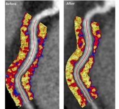 Coronary CT angiography images of a coronary artery depicting the perivascular fat attenuation index (FAI) before and after biologic therapy at one-year follow-up. Patients had excellent response to biologic therapy, showing clear reductions in the inflammation in plaques that cause heart attacks and stokes. Image from the Oxford Academic Cardiovascular CT Core Lab and Lab of Inflammation and Cardiometabolic Diseases at NHLBI.