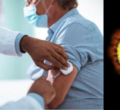 CDC and FDA Call for Pause on Janssen COVID-19 Vaccine Due to Rare Blood Clots #COVID19 #Janssen