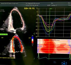 An example of artificial intelligence on the GE Healthcare Vivid E95 system shown at ASE 2019 where the AI automatically pulls in an exam, identifies the left ventricle and myocardial boards and then calculates all the strain measurements in less than 10 seconds. While AI automation can greatly speed workflow, there are questions about the accuracy of AI forthe next step in making diagnoses. #ASE #ASE21 #ASE2021 #AI
