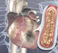 cath lab cardiac diagnostics genetic testing antiplatelet therapy blood monitors