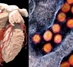 COVID-19 has a big impact on the heart, and patients with pre-existing cardiovascular disease haveat least a 10 percent higher risk of death and severe complications due to the virus. The virus also can cause myocarditis, blood clotting, and impact the cardiovascular system due to severe, hyperactive inflammatory responses.Left, a cardiac CT scan 3-D rendering. right, the COVID-19 virus from a National Institutes of Health (NIH) photo.