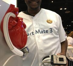 A patient who received HeartMate III LVAD system at ACC.18. The HeartMate 3 was the topic of of the the key late-breaking trials at #ACC18