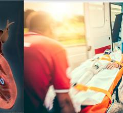 The Abiomed Impella percutaneous heart pump was shown in the NCSI study to greatly improve survival of acute myocardial infarction with cardiogenic shock (AMICS), raising survival from 50 percent to 71 percent. Ambulance image from Getty Images.