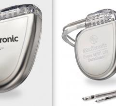 """Medtronic is recalling some of its implantable cardioverter defibrillators (ICD) and cardiac resynchronization therapy (CRT-D) devices because of an unexpected and rapid decrease in battery life. The company said this is due to a short circuit and will cause some devices to produce a """"Recommended Replacement Time"""" (first warning that the battery is low) earlier than expected. Some devices may progress from """"Recommended Replacement Time"""" to full battery depletion within as little as one day."""