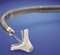 FDA Approves MitraClip for Use in Heart Failure Patients With Functional Mitral Regurgitation