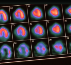 Nuclear cardiology SPECT scan showing myocardial perfusion. A new consensus document issues by ACC and other societies provides guidelines on managing radiation dose.