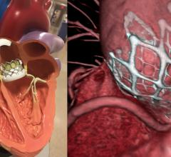 Thetwo FDA-clear transcatheter aortic valve replacement (TAVR) valves on the market, the Edwards Lifesciences Sapien 3 (left) and the Medtronic CoreValve (right).