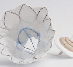 Abbott Tendyne TMVR, TMVI system received European CE mark clearance in January 2020. The Abbott Tendyne transcatheter mitral valve replacement (TMVR) system uses an anchor attached to the apex of the heart with a whether line attached to the valve. This helps to keep the valve anchored in the mitral annulus and prevent embolization. This anchor system was used because, unlike the aortic valve, the mitral valve has a very thin landing zone to secure the valve. Prevents LVOT obstruction.