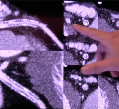 Clear detail of the in-stent restenosis can be seen in this image from the new high-resolution Canon Precision CT system.