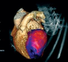 perfusion imaging, CT perfusion