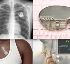 In the past decade there has been a proliferation of clinical-grade wearable monitors and implantable devices such as pacemakers, ICDs, implantable cardiac monitors, and new pacemaker-like devices that can control hypertension. In the near future, these devices will be tied into a body-wide internet of things for specific patients that can transmit patient data to clinicians wirelessly to enable an integrated, more robust form of telecardiology and telemedicine.