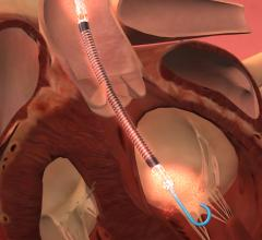 The Abiomed Impella heart pump