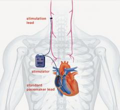 cardiofit, vagus nerve stimulation for heart failure, bio control medical