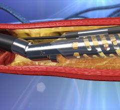The Medtronic's TurboHawk atherectomy system. Covidien, Medtronic, TurboHawk, Atherectomy system