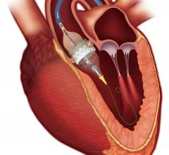Edwards Sapien 3 TAVR valve will be implanted in asymptomatic aortic stenosis patients in the EARLY TAVR Trial