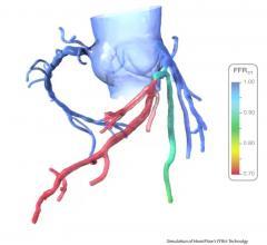 FFR-CT, heartflow
