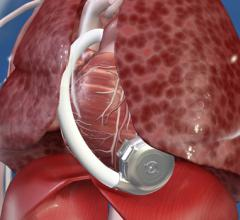 Heartware HVAD recall for its ventricular assist device from Medtronic
