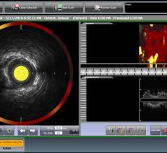near-infrared spectroscopy, NIRS, heart attack, stroke, Infraredx, TVC