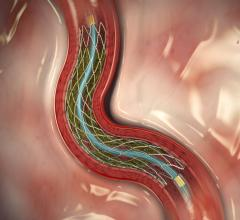 The Medtronic Resolute Integrity drug-eluting stent is among the top three stents on the U.S. market. Outcomes for these stents are very similar, so the stents have largely become a commodity product purchased on price rather than clinical data. Stent advances and new stent technologies.