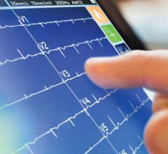 Mortara, ELI 280, TouchScreen ECG, ECG advances, new ECG technology