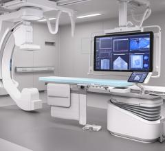 Philips Azurion angiography system, image-guided therapy system.