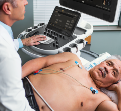 Philips Epiq cardiac ultrasound system includes automation based on artificial intelligence