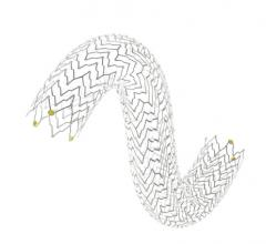 Terumo Corp. Arterial Remodeling Technologies Bioresorbable Coronary Stent