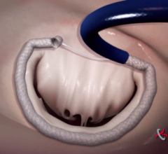 Valtech, cardioband, transcatheter mitral annuloplasty