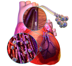 Cytori Stem Cell Therapy Heart Failure Treatments PRECISE Trial