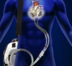 Syncardiac, driver, artificial heart