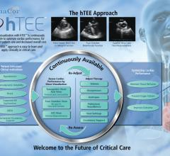 hTEE 24/7 Clinical Support Program ImaCor