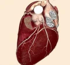 radiation therapy, breast cancer, breath hold, heart, clinical study