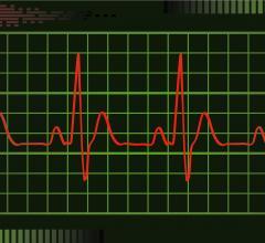 Geneva Healthcare, Geneva Healthcare Suite 2.0, HRS, patient engagement