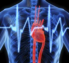 arrhythmia, heart cells, mapping, crosstalk, Johns Hopkins, Ashikaga