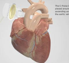 Clinical trial/study, heart failure, Sunshine Heart, C-Pulse System