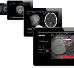 remote viewing systems software mobile devices rsna 2013 aycan