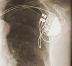 Pacemakers and Other Cardiac Devices Can Help Solve Forensic Cases