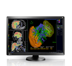 rsna 2013 flat panel displays radiforce rx650