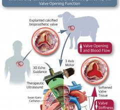 Novel Approach May Improve Valve Function in Some Patients