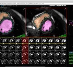 Heart Imaging Technologies, Precession, cardiac magnetic resonance, software