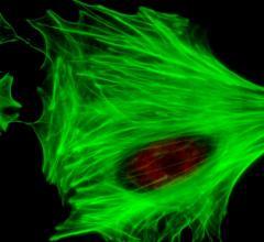 stem cells, cytori, stem cell therapy