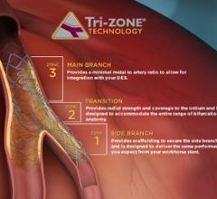 Tryton Side Branch Stent EXTENDED Access Registry